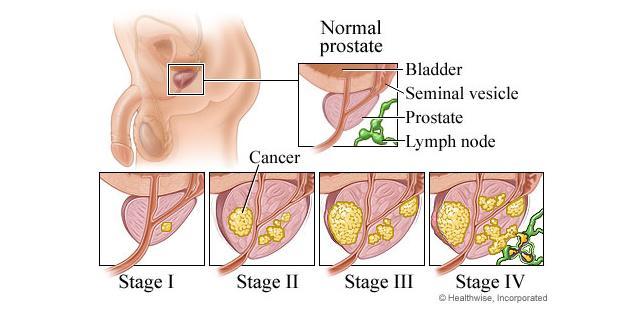 aggressive prostate cancer