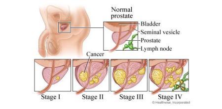 prostatecancer2